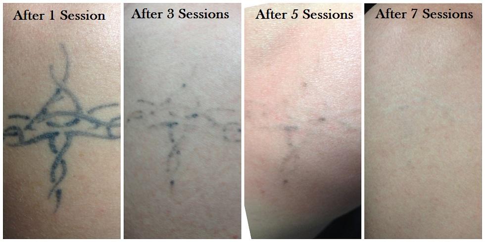 Skin renew ks for Tattoo removal in kansas